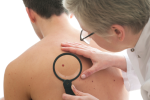 moles & skin cancer checks